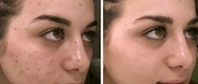 Best Foundation to Cover Dark Spots